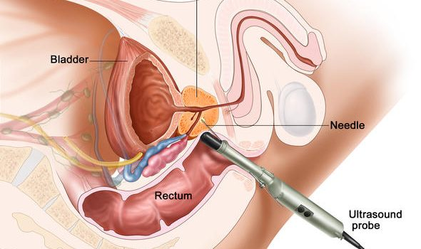 Transurethral_Incision_of_Prostate