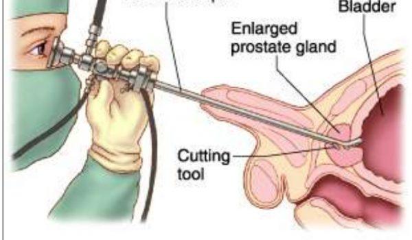 Urologist in Baner | Andrologist in Baner