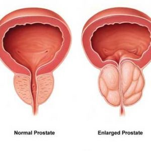BPH-Enlarged-Prostate-400